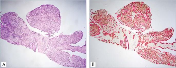 intraductalis papilloma lcisszel)