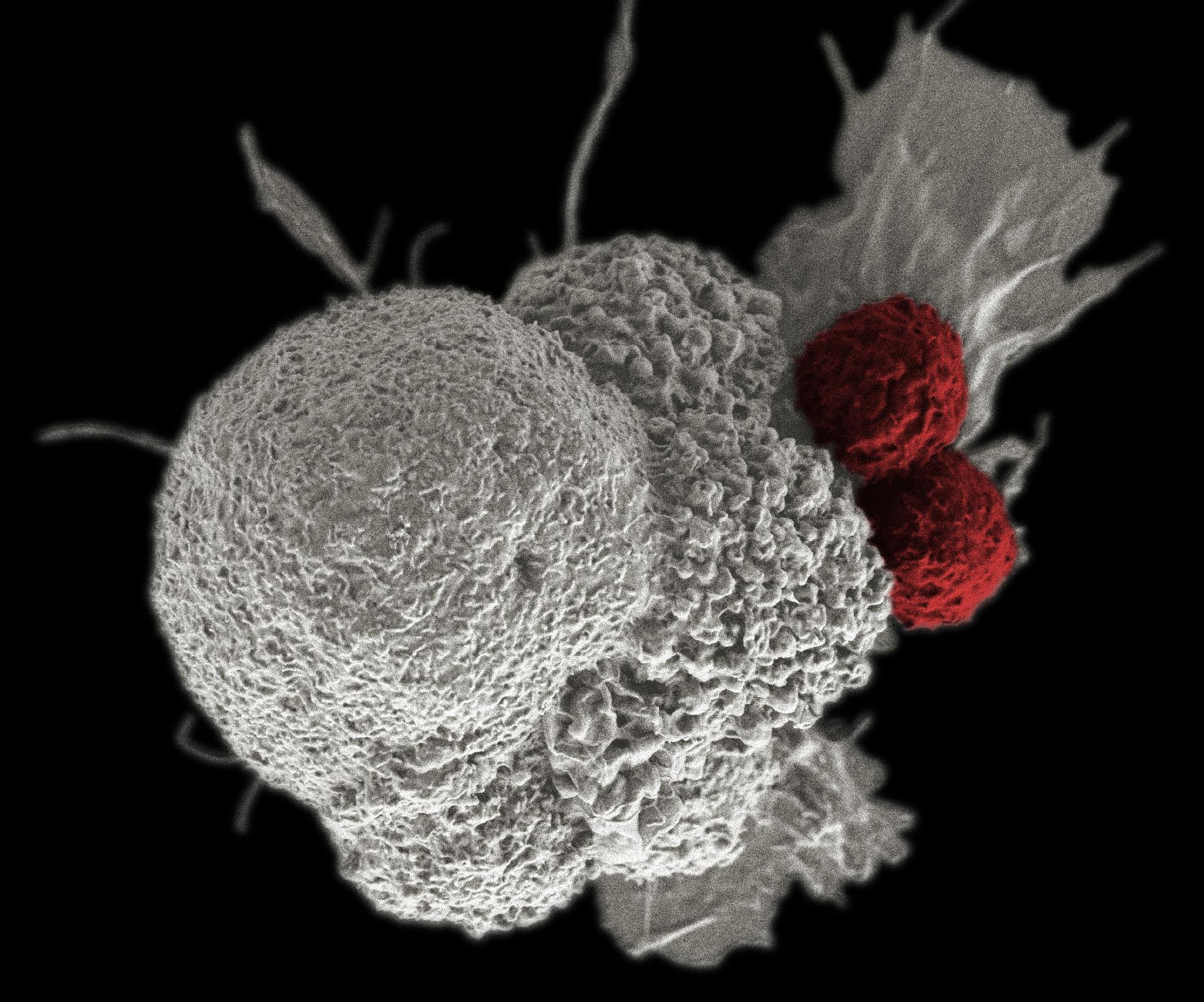 kezeletlen rák
