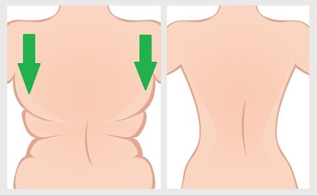 A bőr alatti dudorok kezelése - Márkamonitor