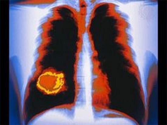 Tüdőrák: új műtéti eljárás - HáziPatika