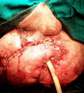 nagy condyloma az ajkán szemölcsök kezelésére férfiaknál