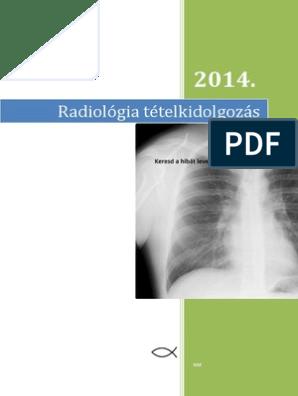 összefolyó és hálózatos papillomatosis kezelés)
