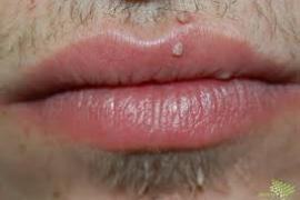 papilloma vírus és férfiak)