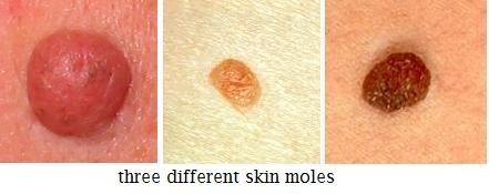 papillomas mole paraziták tisztító tabletták gyógyszerekhez