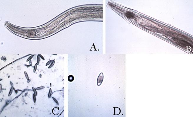 pinworms ami azt jelenti