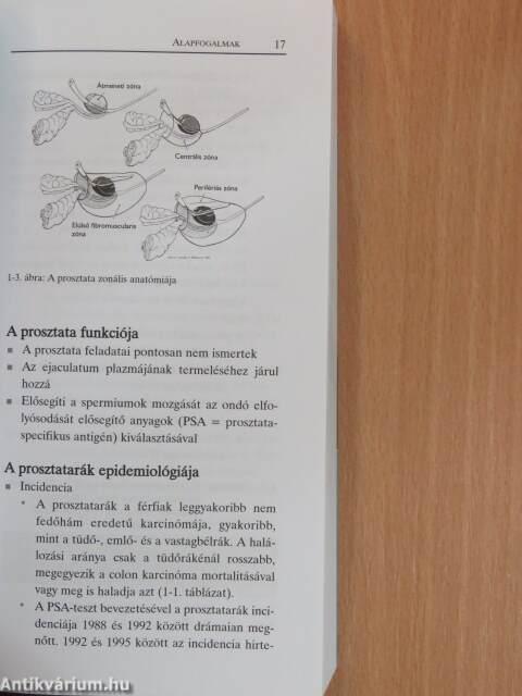 prosztatarák patológiája