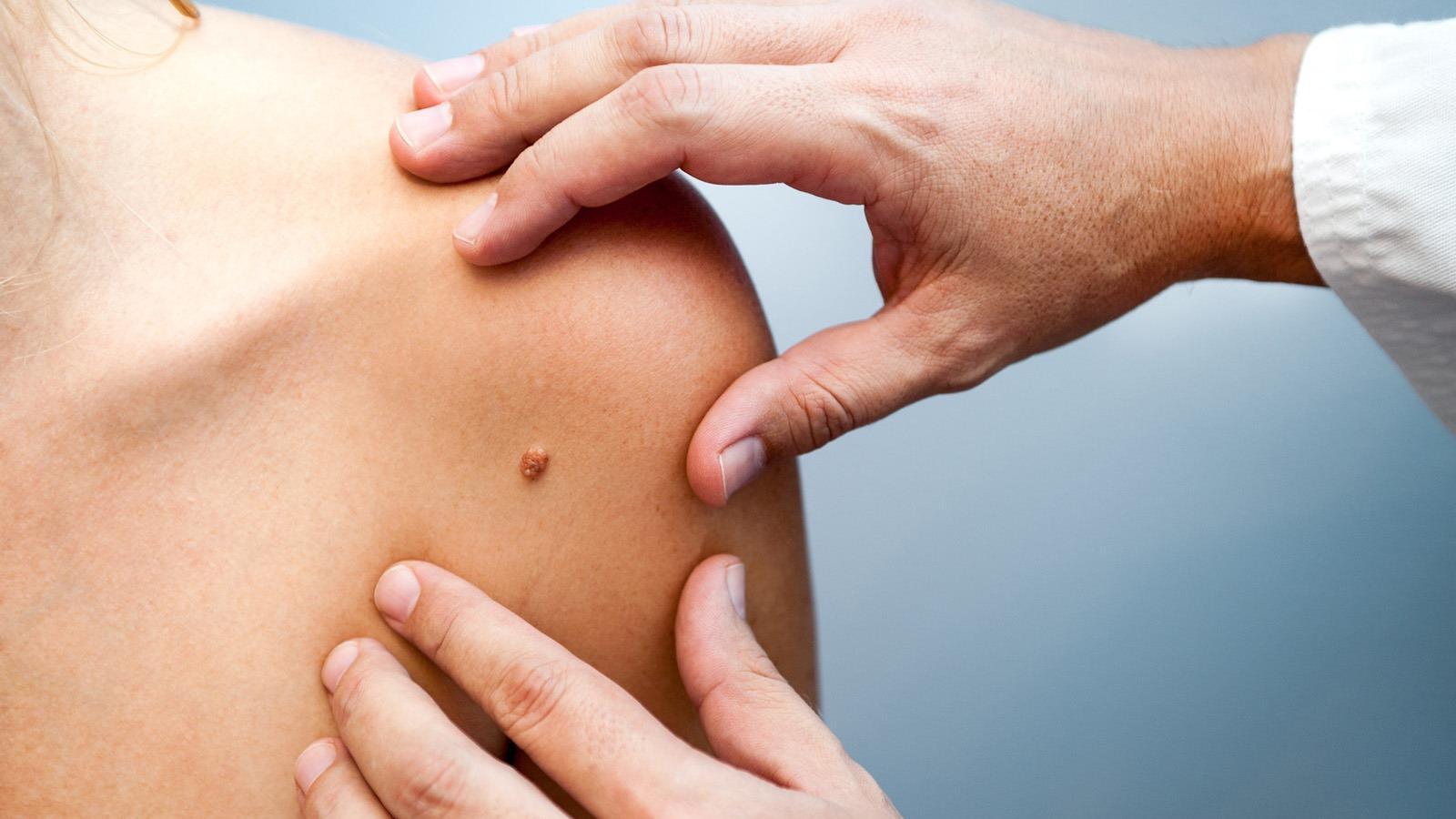 Bőrbetegségek   EgészségKalauz