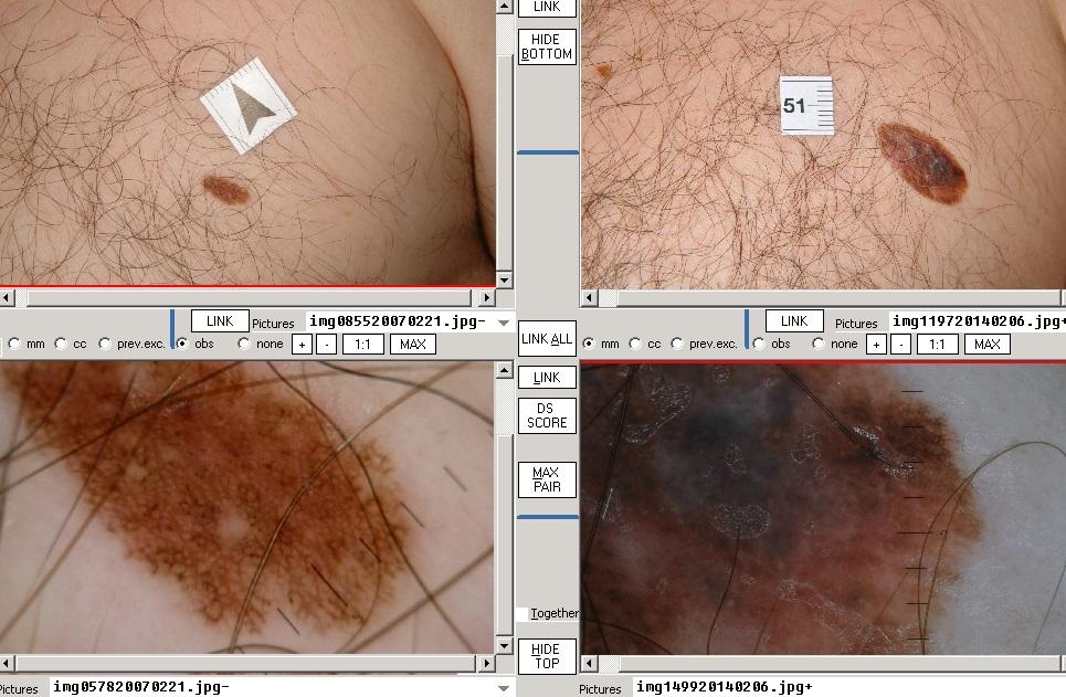 stádiumú bőrrák