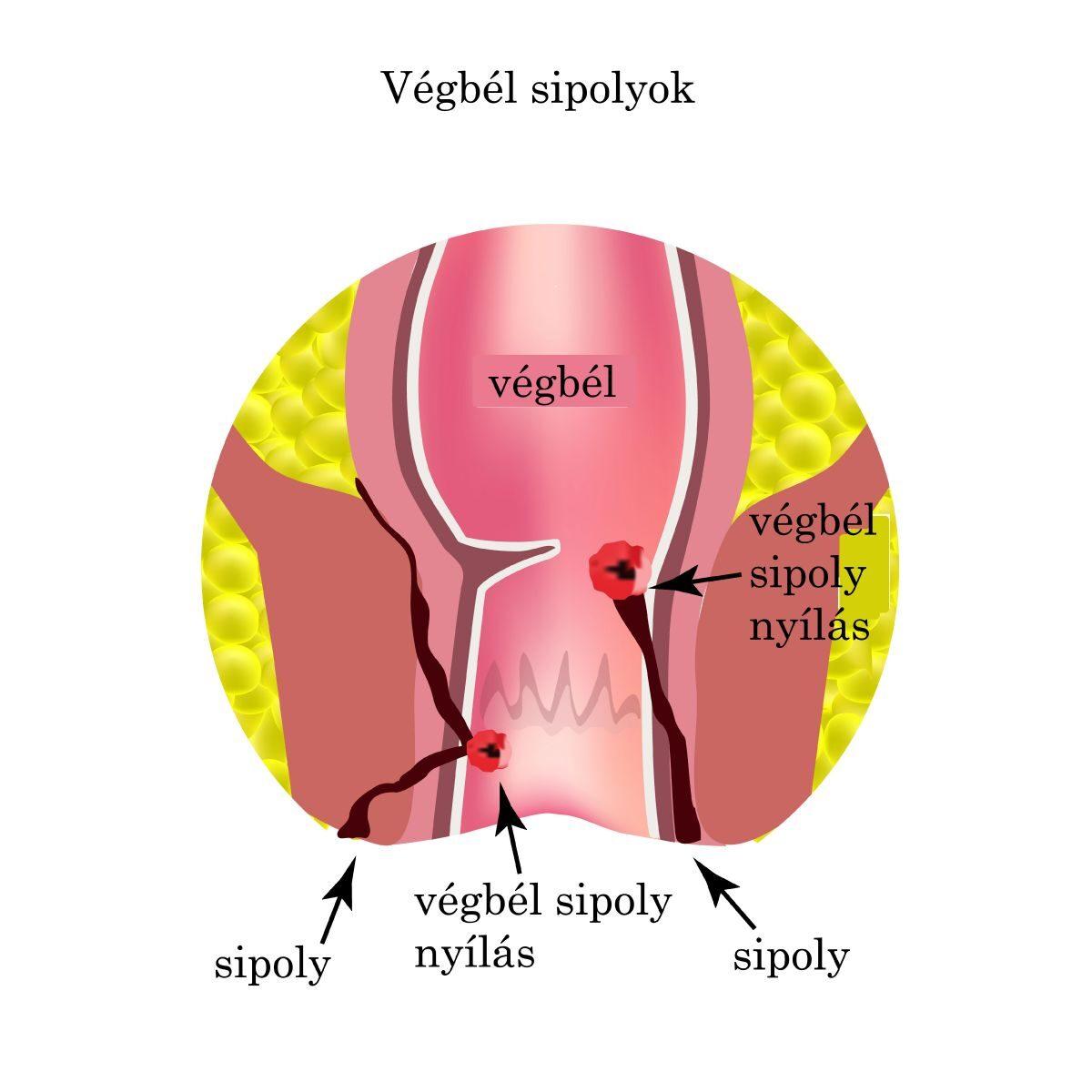 féreghajtó szoptatás alatt az emberi papilloma vírus elmúlik
