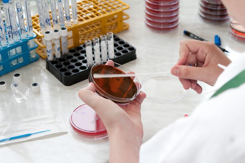 kezelés az ujjak között platyhelminth fokozatú turbularia
