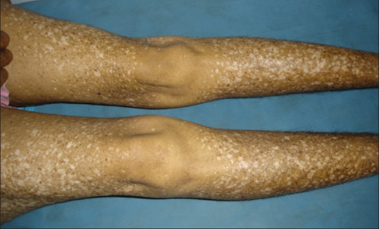 Confluens reticularis papillomatosis