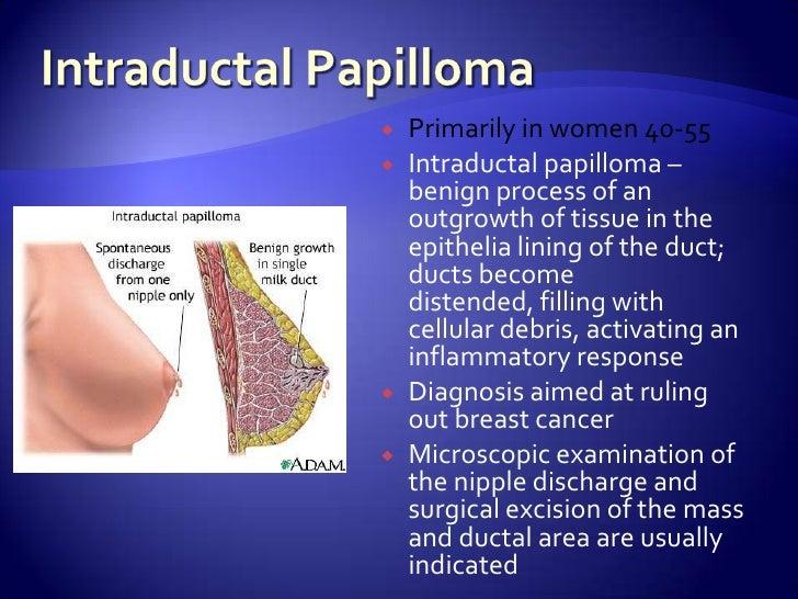 intraductalis papilloma lumpectomia)