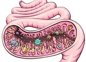 a bél diszbiózisa papilloma oldat