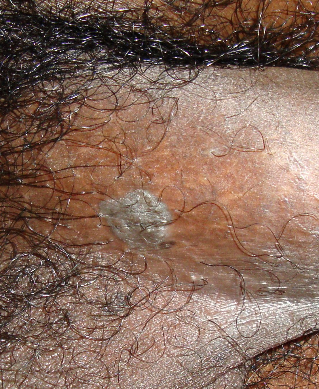 condilom rotund szarvasmarha-papillomatosis fogalma