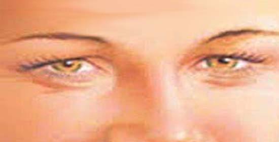 hogyan lehet eltávolítani a szem közelében lévő papillómát)