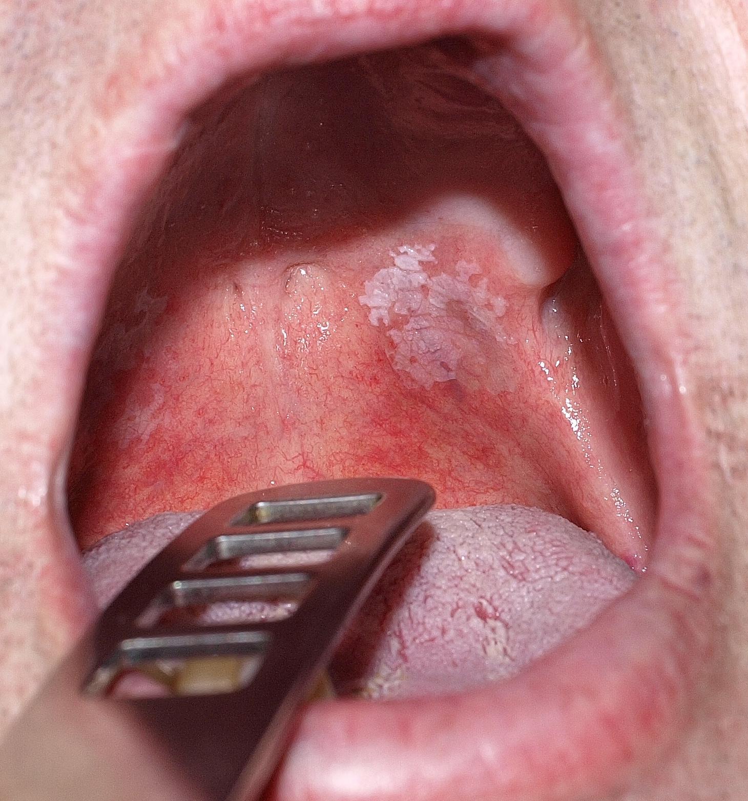 papilloma a nyelv hegyén)