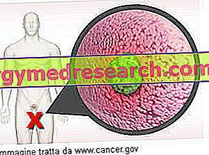 metasztatikus rákos prosztata kezelés)