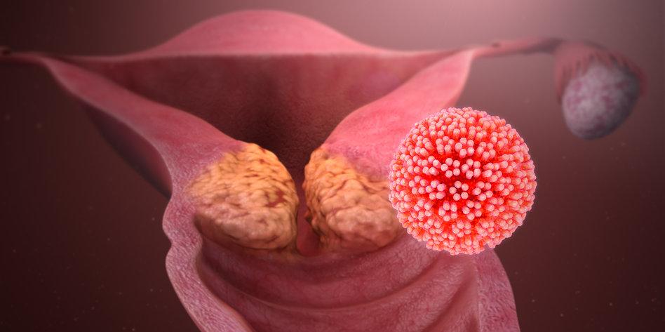 hpv vírus erneute ansteckung