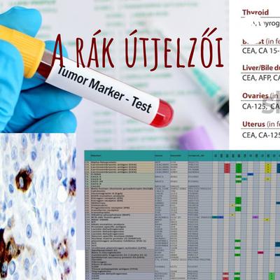 Méhtest daganatok | Hungarian Oncology Network - setalo.hu