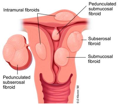 A nőgyógyászati daganatok