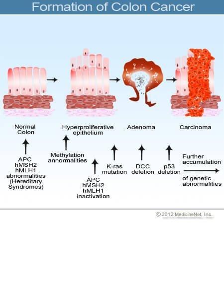 vastagbél peritoneális rákja