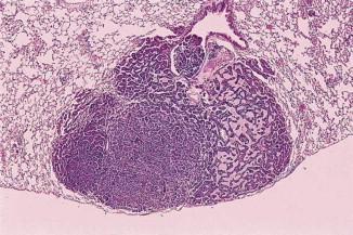villous papilloma meghatározása