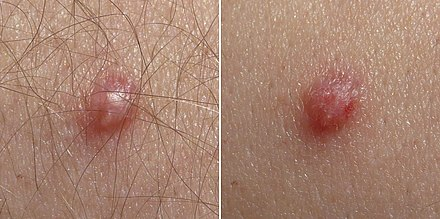 genitális herpesz papilloma)