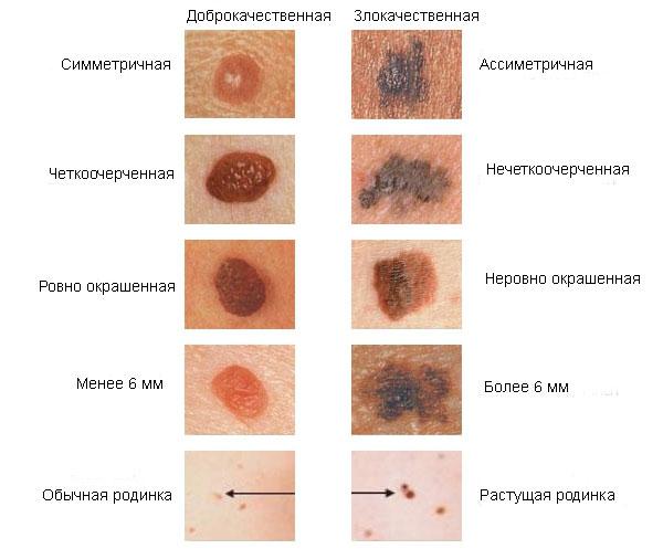 A mólok, a szemölcsök, a papillomák, a fibroidok különbségei