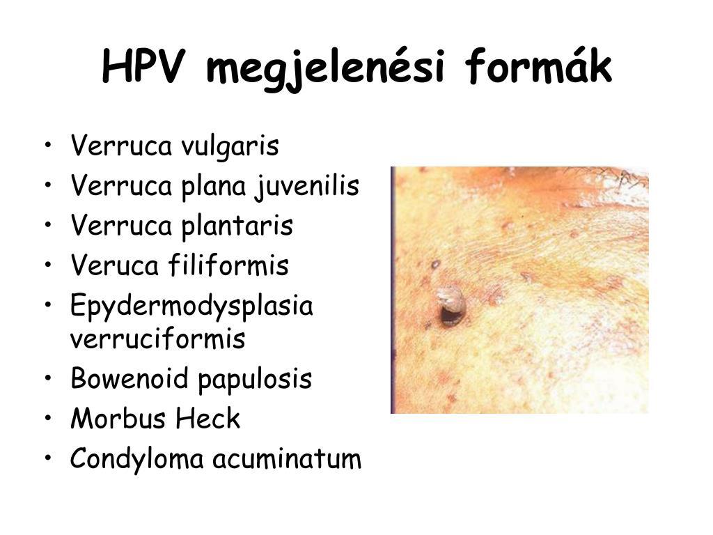 labialis papilloma kezelés)