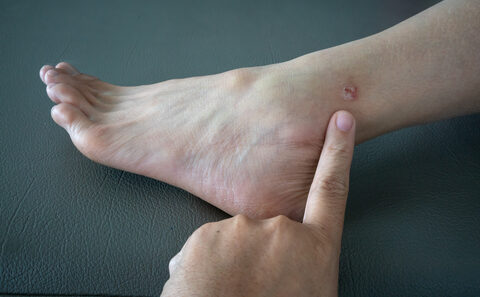 bőrrák tünetei gyermekeknél