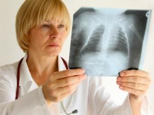A tüdőrákról