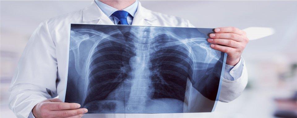 Tüdő férgek az emberekben, hogyan kell kezelni. A Magyarországon előforduló féregfertőzések