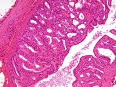 intraductalis papilloma apokrin atypiával