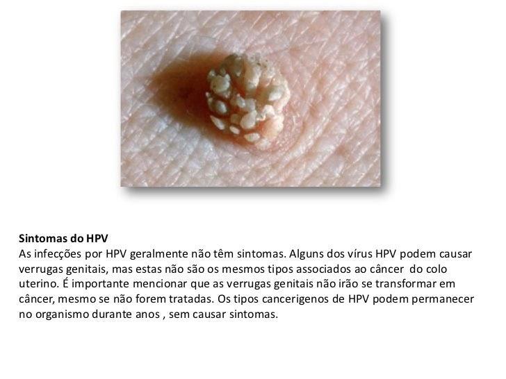 hpv vírus nu)