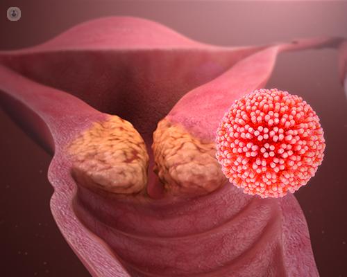 HPV humán papillomavírus)