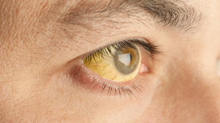 a hasnyálmirigyrák tünetei
