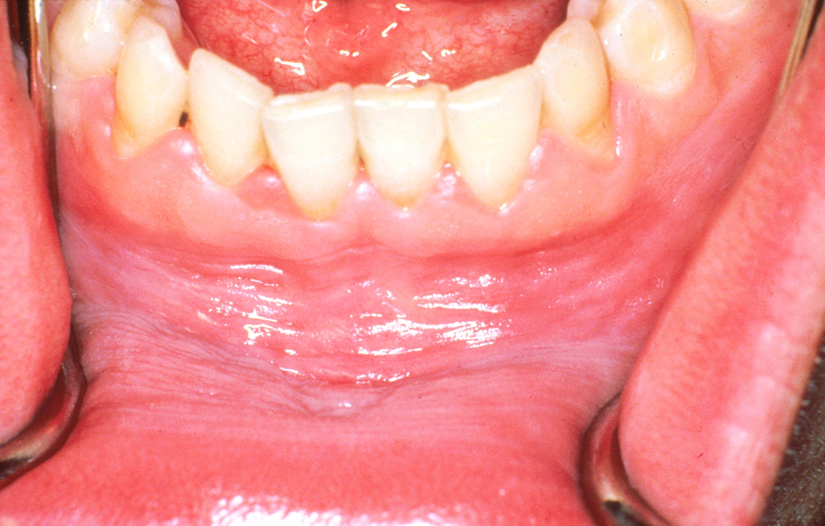 hpv szájjelek