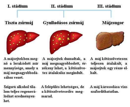 májrák kezelési lehetőségei)