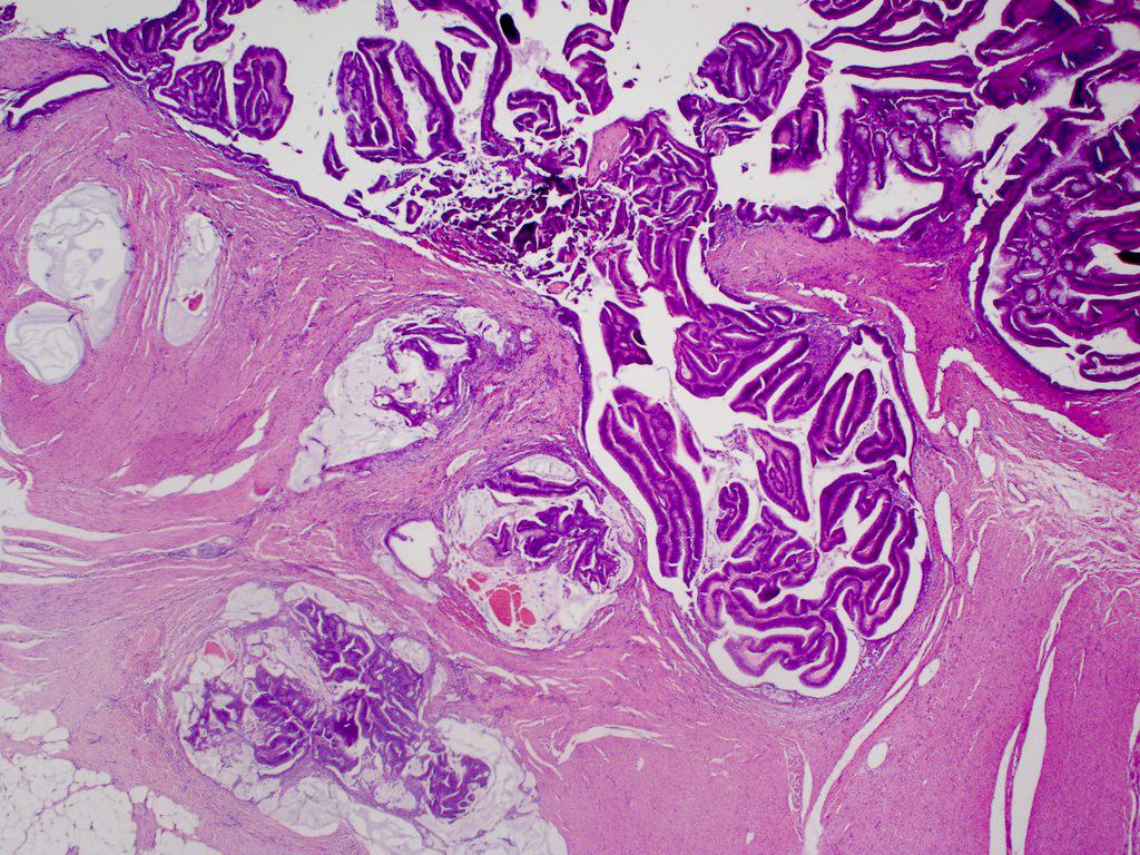 helminták emberben a gyermekek tüneteinek kezelése parazitaellenes tabletta