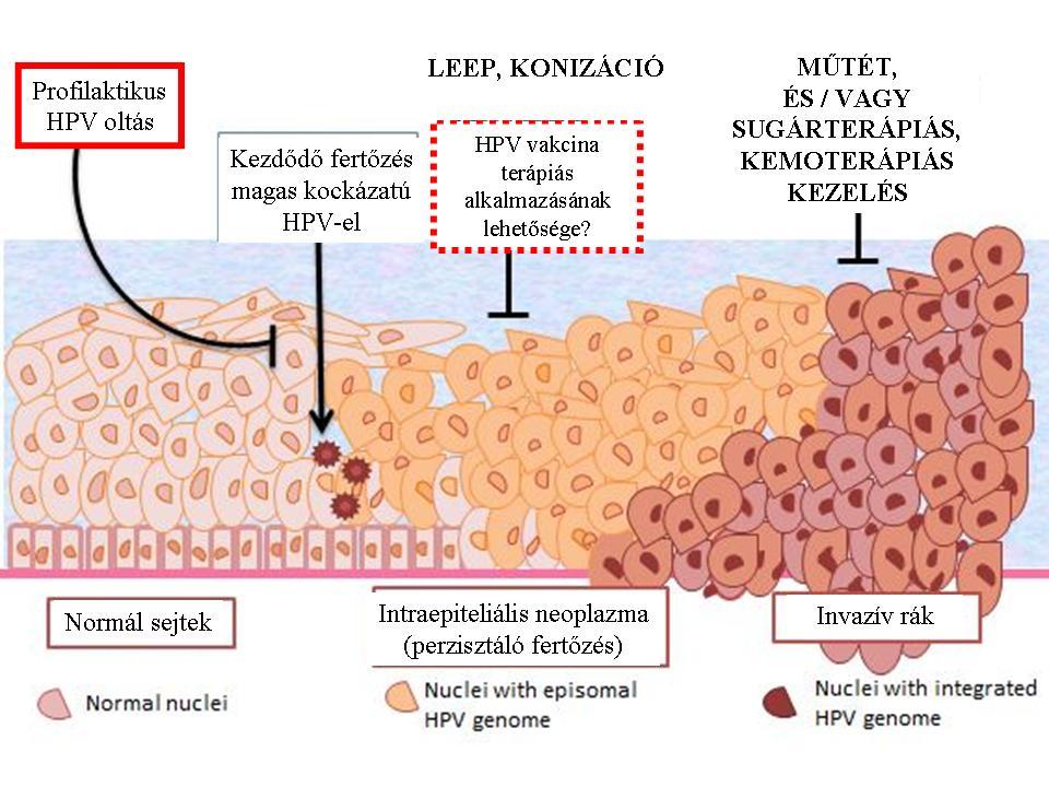 HPV - Human papillóma vírus