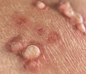 Genitális területen psoriasis