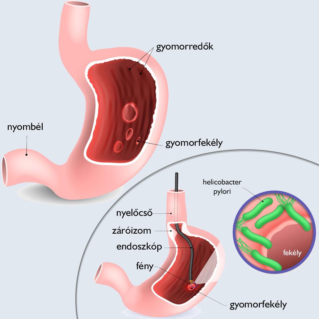 ami a gyomor papilloma