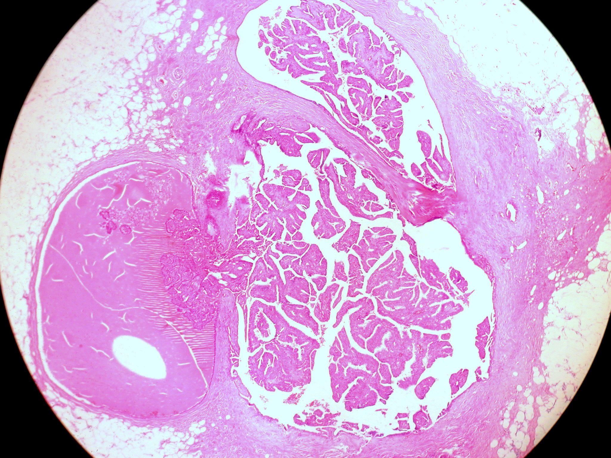 amely a ductalis papillomatosis humán papillomavírus hpv vakcina kor