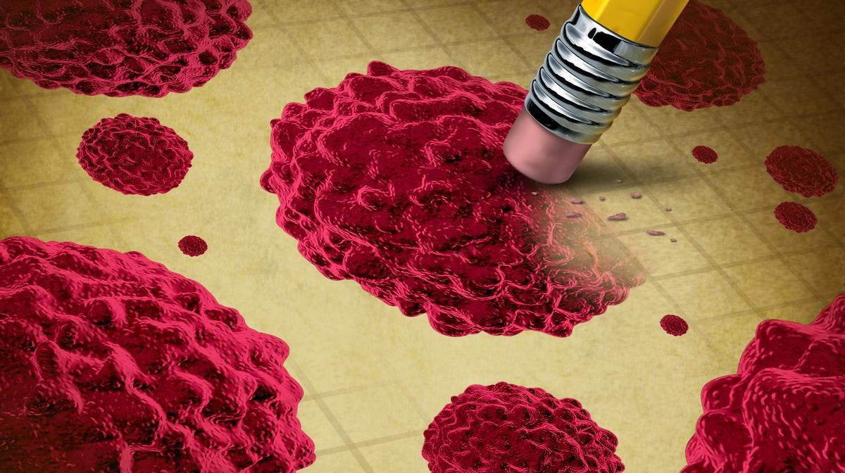 papilloma vírus vastagbélrák