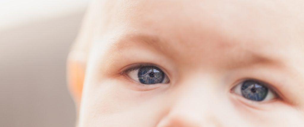 papilloma egy gyermek szeme alatt)