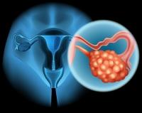 6 nőgyógyászati tünet, melyet komolyan kell venni