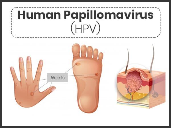 humán papilloma vírus kad n