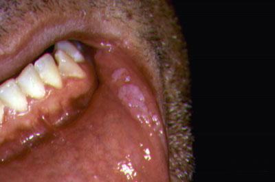 humán papilloma vírus papilloma