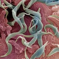 a helmint enterobiosis különbsége)
