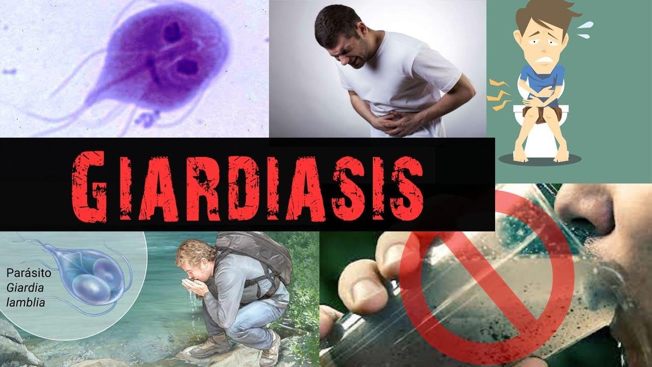 Giardiasis megnyilvánulása a bőrön. Fergek, mint gyogyitani A giardiasis bőr megnyilvánulása